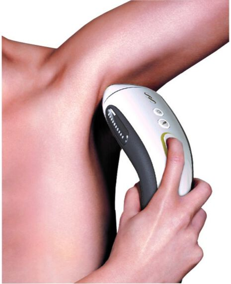 300K IPL Long Term Hair Removal System